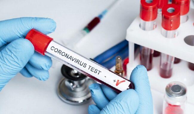 Coronavirus, boom di contagi: 185 nuovi positivi in provincia di Siracusa. In Sicilia 1.739